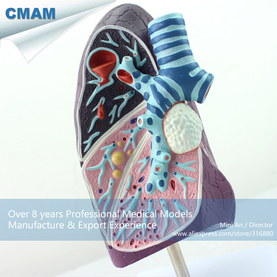 CMAM-LUNG04 Diseased Lung Medical Model Pulmonary Anatomy Respiratory,  Medical Science Educational Teaching Anatomical Models hot vivid lung segments model pulmonary segments model lung model