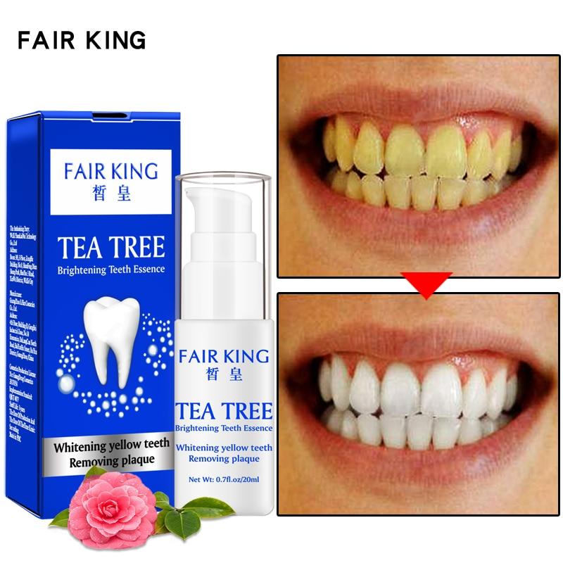 Dientes Blancos White Teeth Witte Tanden Whitener Clarear Os