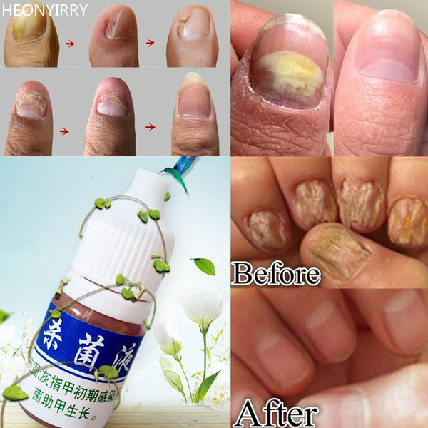 10ml Health Skin Care Nail Repair Treatment Liquid Cleanser Onychomycosis Remover Serum Beauty Disinfect Water In Treatments From On