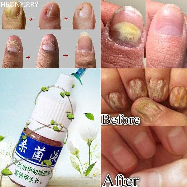 10ml Health Skin Care Nail Repair Treatment Liquid Cleanser ...