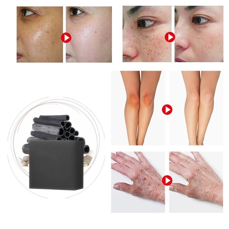 1Pcs Acne Scar Remover Cells Regeneration Skin Repair Face Soap Acne Spots Acne Treatment Oil Control  Blackhead Whitening Soaps