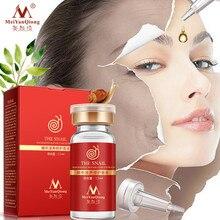 MeiYanQiong сывороточная эссенция для лица чистый растительный экстракт жидкая Улитка Гиалуроновая кислота Омолаживающая отбеливающая Сыворотка для кожи против акне