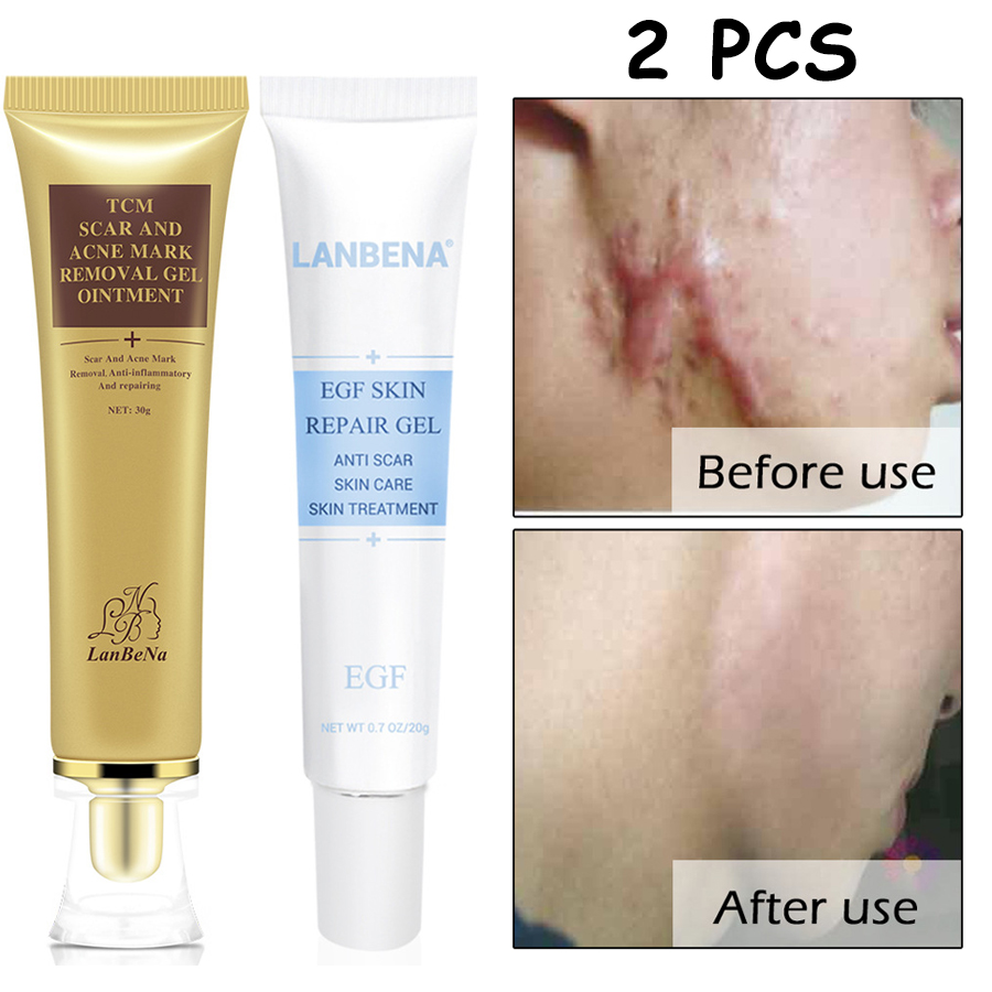 LANBENA Scar And Acne Mark Removal Gel Ginseng Extract Against Black Dots Cream Blackhead Acne Skin Care Treatment 30g+20g