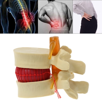 Lumbar Vertebrae Model Anatomical Spine Lumbar Disc Herniation Anatomy Medical Teaching Tool Lumbar Vertebrae Model life size human lumbar vertebrae model vertebra lumbalis intervertebral disc anatomy skeleton medical teaching tool pnatomy