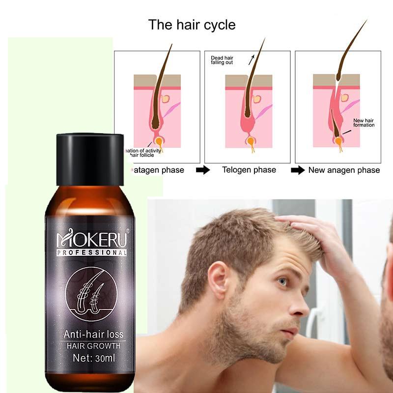 Mokeru 30ml Natural Anti Hair Loss Products Vitamins Wild Growth Castor Oil Hair Serum Oil For Hair Growth Agent Care Treatment