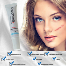 Acne Treatment Cream Scar Removal Oily Skin Acne Spots Skin Care Face Stretch Marks Maquiagem Nuobisong Lanbena Face Anti Care цена и фото