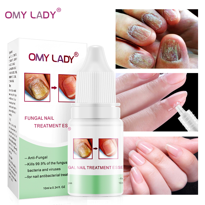 OMYLADY Fungal Nail Treatment Essence Toe Anti Nail Fungus Infection Treatment Repair Cream Remove Onychomycosis Nail Care Tool