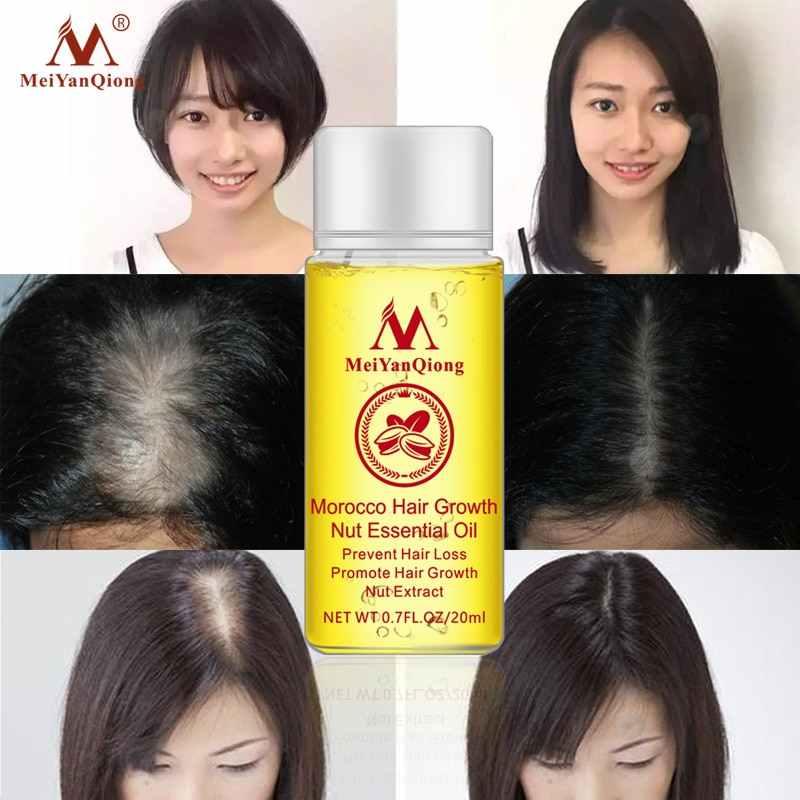 MeiYanQiong Marokko Haar Wachstum Mutter Ätherisches Öl Haar Schnelle Wachstum Essenz Produkte Ingwer Natürliche Haarausfall Behandlung Haar Pflege