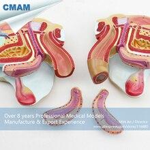 CMAM-ANATOMY08 Life Size Female Pelvic Organ Section Anatomical Model, 4 Parts, Anatomy Models > Pelvis Models > Female