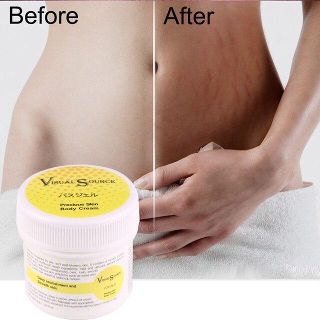 Crème pour la peau lisse pour l'élimination des cicatrices de vergetures pour la réparation de la peau de maternité