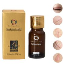 Pure Remove Ance Burn Strentch Marks Scar Removal Ultra Brightening Spotless Oil Lavender Natural Essence Skin Care S1