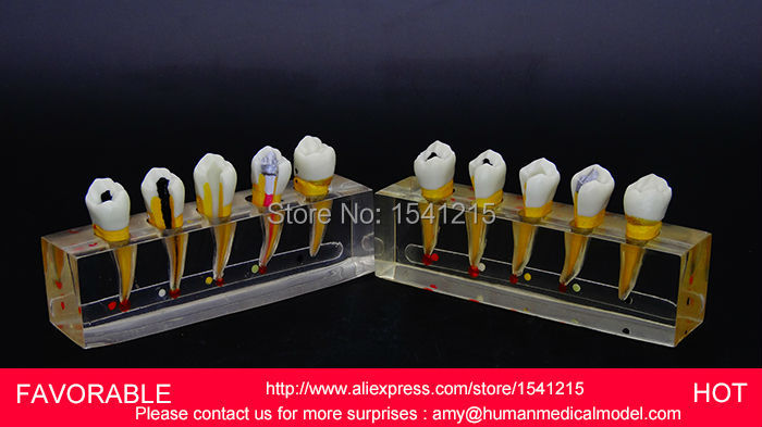DENTAL PATHOLOGY MODEL ANATOMICAL MODEL TEETH MODEL DENTAL CARIES FOR DENTAL TEETH,ENDODONTICS DENTAL MODEL DEMO 2-GASEN-DEN048 dental pathology model anatomical model teeth model dental caries periodontal disease demonstration model gasen den050