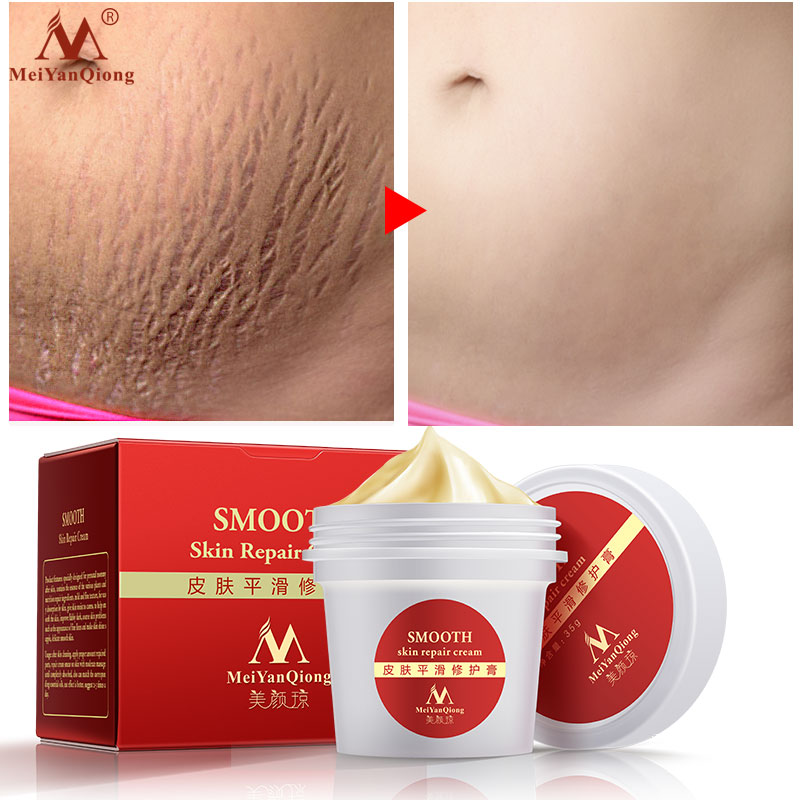 Meiyanqiong Smooth Skin Cream For Stretch Marks Scar Removal To Maternity Skin Repair Body Cream Remove Scar Care Postpartum