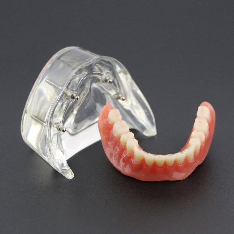 Prothèse dentaire inférieure avec 4 Implants modèle de démonstration #6003 modèle de dents d'étude