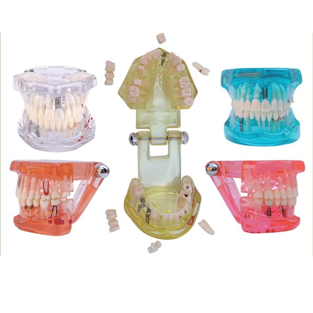 1 UNID Enfermedad de Implante Dental Modelo de Los Dientes con Restauración Puente Diente Dentista para La Enseñanza de La Ciencia Médica