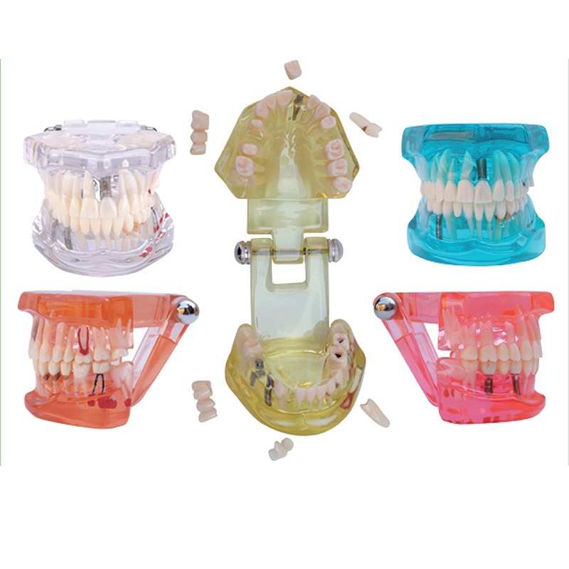 1PC Dental Implant Disease Teeth Model with Restoration Bridge Tooth Dentist for Medical Science Teaching magical science teeth tooth teaching model 1 1 scale adult oral standard typodont demonstration with 28pcs teeth fixed immovable