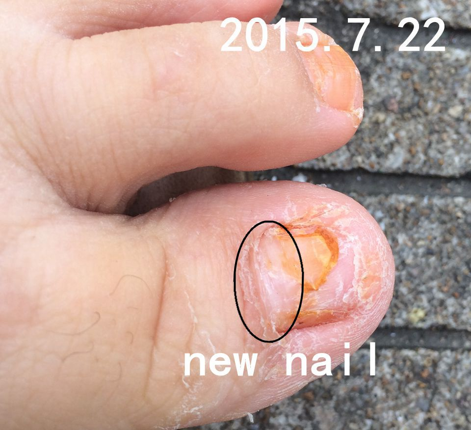 toe nail fungus Gray nail special traditional Chinese Natural nail ...