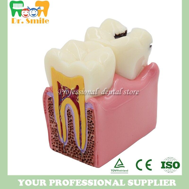 Dents de prothèse modèle 6X, modèle de comparaison des caries, modèle de carie dentaire, dentiste pour l'enseignement des sciences médicales