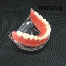 Modelo Con 4 Implante Dental Sobredentadura inferior de Demostración Modelo Dientes Estudio 6002 02
