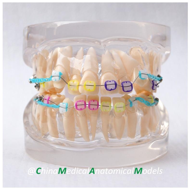 13025 DH202-3 Ortho Ceramic Bracket, Dentist Education Oral Dental Ortho Ceramic Bracket Model, China Medical Anatomical Model dh203 2 dentist demo oral dental ortho metal and ceramic model china medical anatomical model