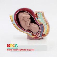 Эмбрион развития тазовой полости модель акушерства модель обучения контроль рождения медицинского обучения MPT001