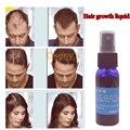 Sunburst Hair Growth Hair Treatment Yuda Pilatory Spray 30ml Bottle, Anti Hair Loss Faster Thickener for Hair Thickening Spray