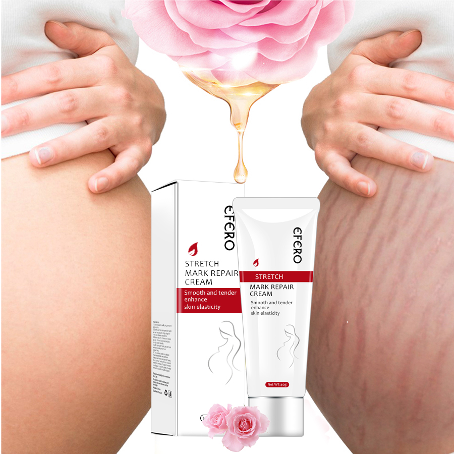 EFERO Pregnancy Scar Remove Acne Cream Stretch Marks Treatment Maternity Repair Cream Anti-Aging Anti Winkles Firming Body Cream