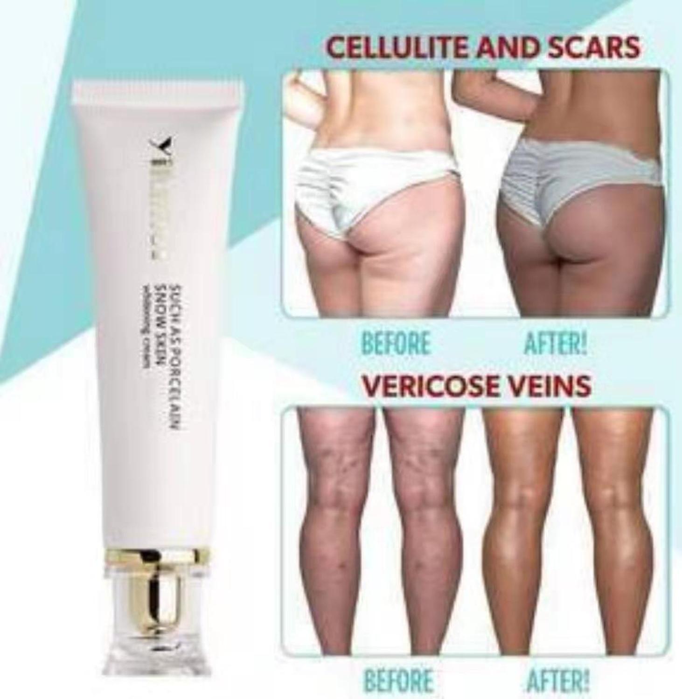 Cellulite Removal Cream Remove Scar Cream Firming Cream Whitening