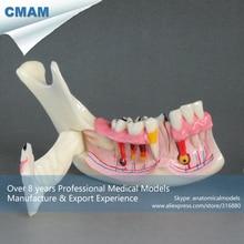 CMAM-DT1901 Plastic Human Mandibular Quadrant Model with Hinged Buccal Plate