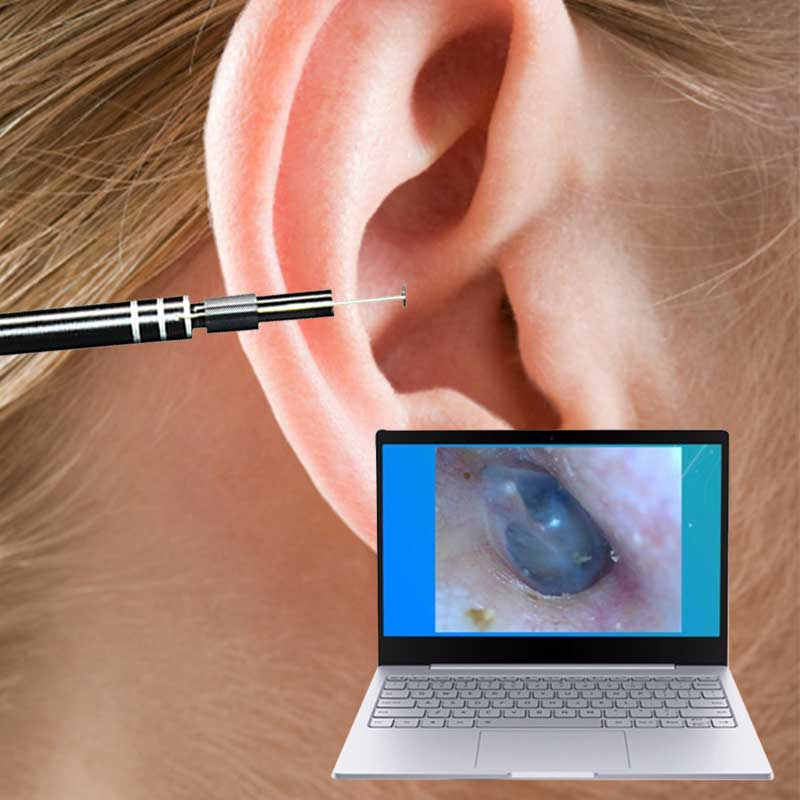 New USB Ear Cleaning Tool HD Visual Ear Spoon Multifunctional Earpick With Mini Camera Pen Ear Care In-ear Cleaning EndoscopeNew USB Ear Cleaning Tool HD Visual Ear Spoon Multifunctional Earpick With Mini Camera Pen Ear Care In-ear Cleaning Endoscope