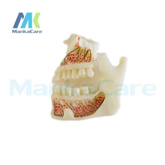 Manka Cuidar-Feita de resina importada. no lado esquerdo, pode visualmente ver a raiz, tecido do nervo e da mandíbula Modelo Oral Dente Dentes Modelo