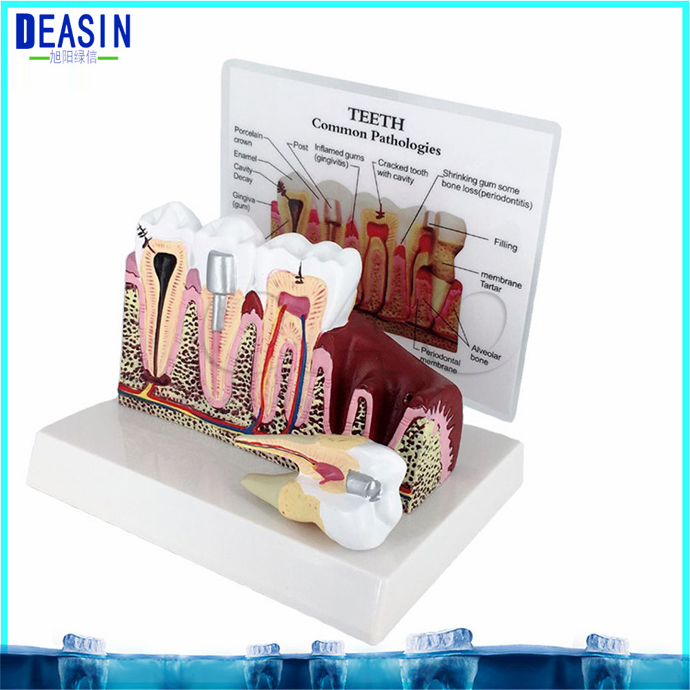 High Quality Caries Tooth Model Dentist Patient Communication Anatomy Model Dentistry Rich Details Teaching Aids Equipment caries tooth model dentist patient communication anatomy model dentistry rich details teaching aids equipment