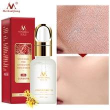 Hamamelis Pore Shrinking Essence Effectively Clean Exfoliator Whitens Skin Replenishes Moisture Shrink !
