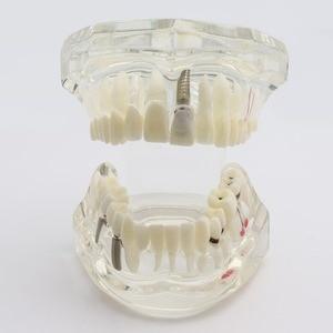 Image 3 - Dental Zähne Modell Implantat und Restaurierung Modell Transparent Studie Analyse Demonstration Zähne Modell Mit Restaurierung Brücke