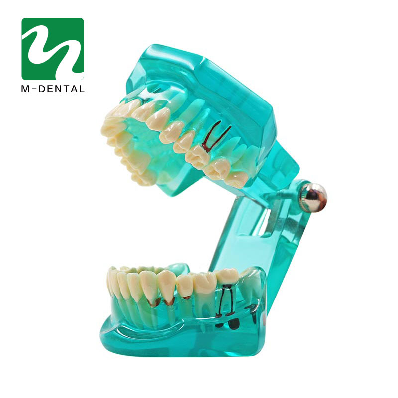 Dental Teeth Model Implant Model Transparent Blue Removable Teeth Model Teaching Teeth Tool Dental Adult For Medical Science soarday children primary teeth alternating transparent model dental root clearly displayed dentist patient communication
