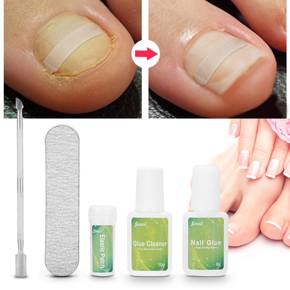 5pcs Ingrown Toenail Correction Pedicure Tool Set 1pc Nail Buffer With Patch Glue Cleaner Nails Care In Art Equipment From Beauty