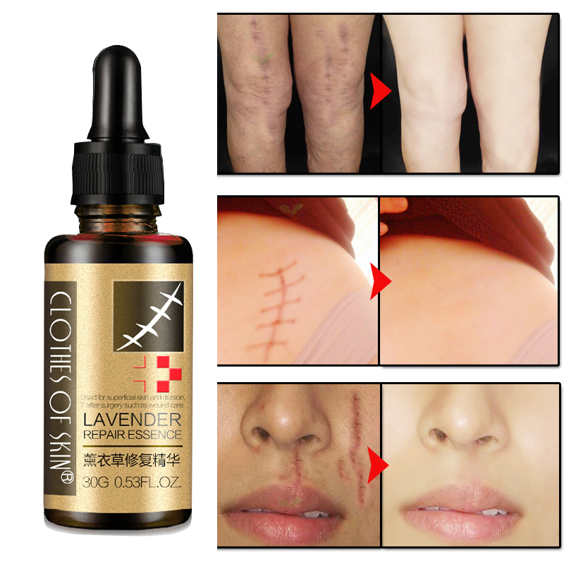 Lavender Remove Scar mark Essence Acne Scar Stretch Marks Hyaluronic acid Skin Repair Product Acne Spots Acne TreatmentLavender Remove Scar mark Essence Acne Scar Stretch Marks Hyaluronic acid Skin Repair Product Acne Spots Acne Treatment