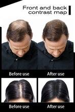 10PCS/LOT wholesale 27.5g TOPPIK 10colors Hair Fiber Powder Bladness Thin Loss Hair Regrow Powder Keratin Hair Building Fibers