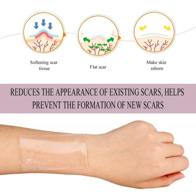 4.5x7.5cm Silicone Removal Patch Reusable Acne Gel Scar Therapy Silicon Patch Remove Trauma Burn Sheet Skin Repair Blue Color 1