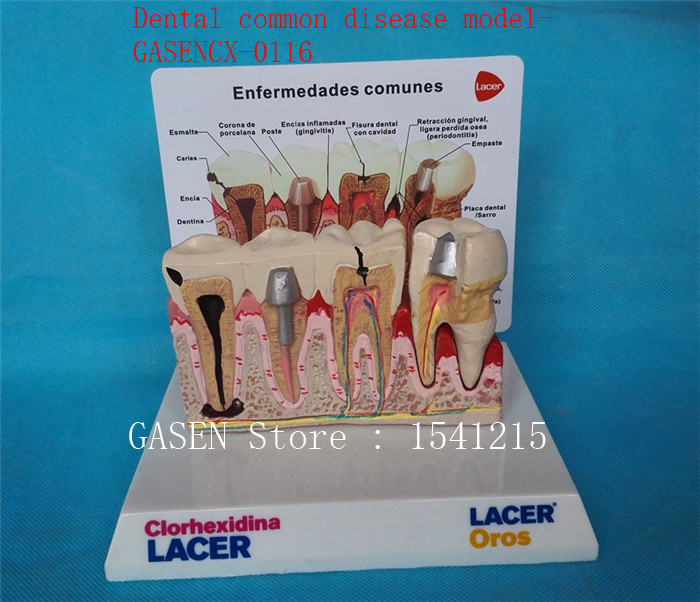 Nursing oral dental model Medical model Nursing tooth model Oral tooth model Dental common disease model-GASENCX-0116 takasima м 609
