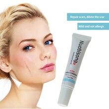 Super Nuobisong Remove Scar Cream Remove Acne Spots Remove Striae Gravidarum Pigmentation Corrector Anti-Aging Moisturizing все цены