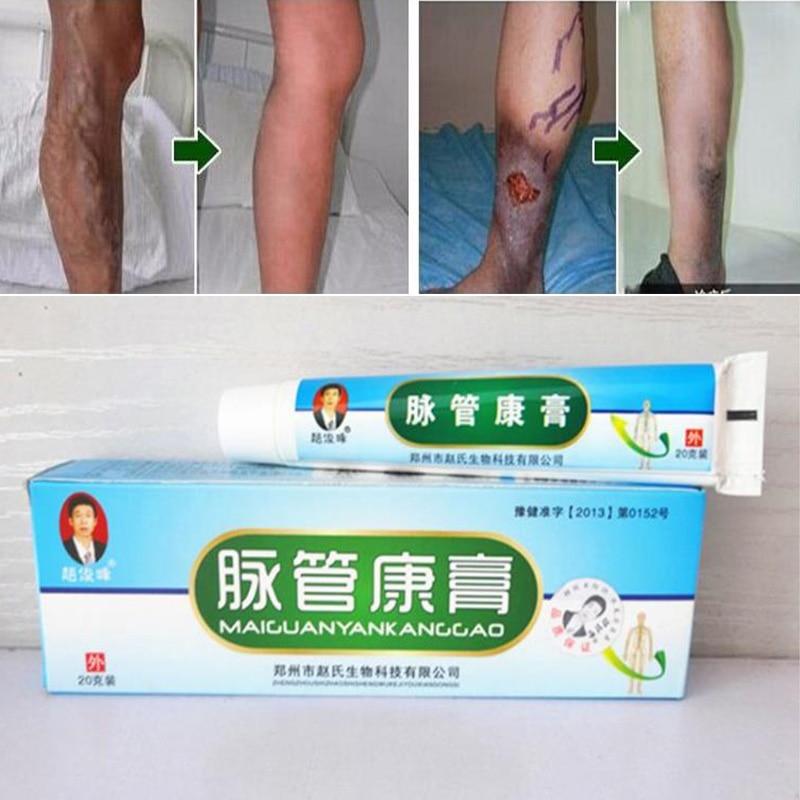 2/3/4/5/10pcs Varicosity Medical Varicose Veins Cream Treatment Anti Foot Leg Vasculitis Phlebitis Herbal Product Dropshoping