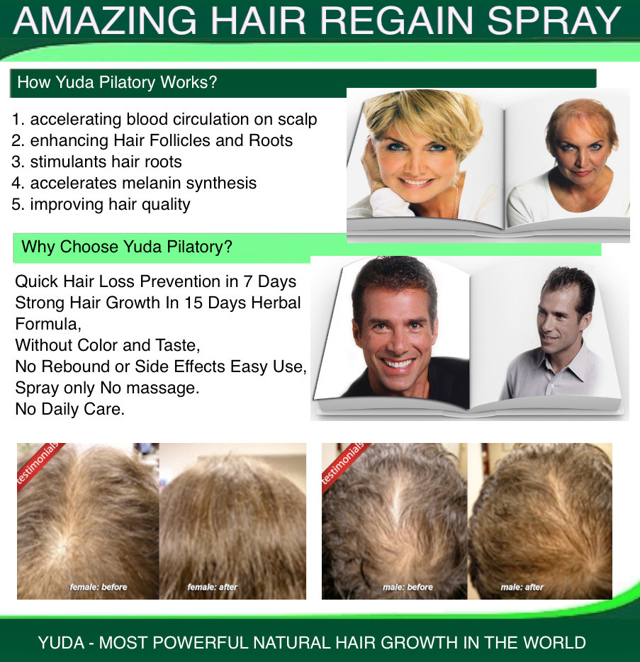 what is saw palmetto for hair loss