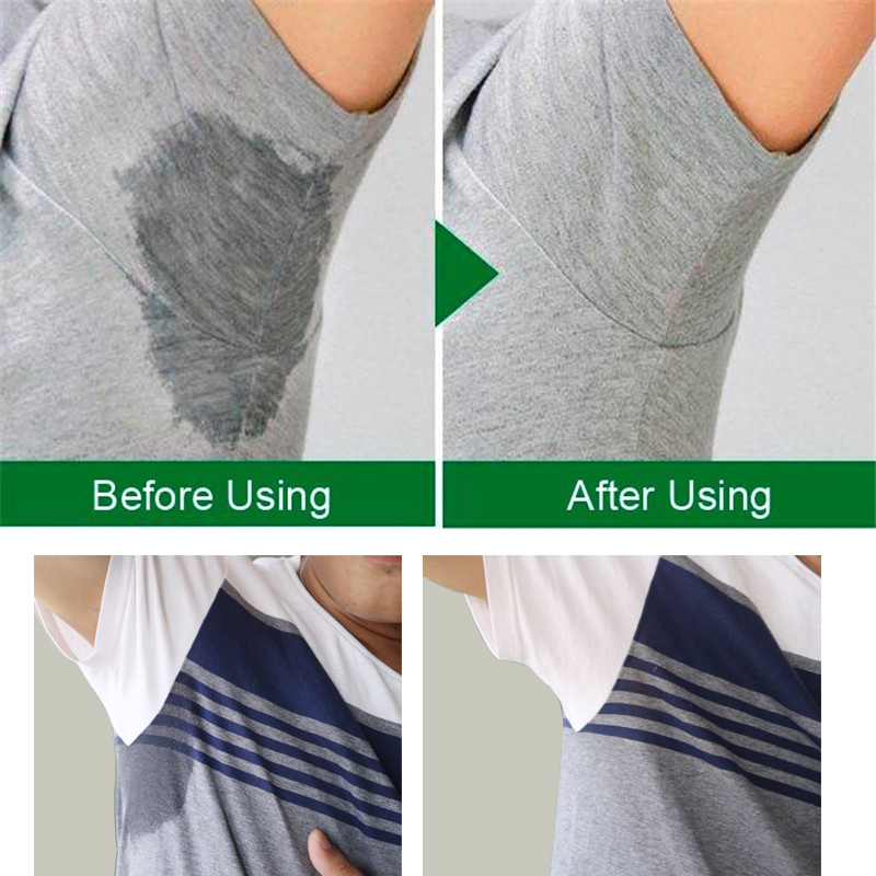Hot DealsDeodorants Dress Sweat-Shield Absorbing Armpit-Sweat-Pads Underarm Summer Disposable