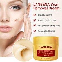 Acne Scar Removal Stretch Mark Cream Repair Moisturizing Skin Care for Women JIU55