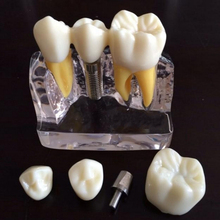 1set Dental Implant Disease Teeth Model with Restoration Bridge Dentist for Medical Science Teaching