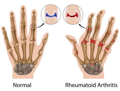 Copper Compression Therapy Hand Gloves