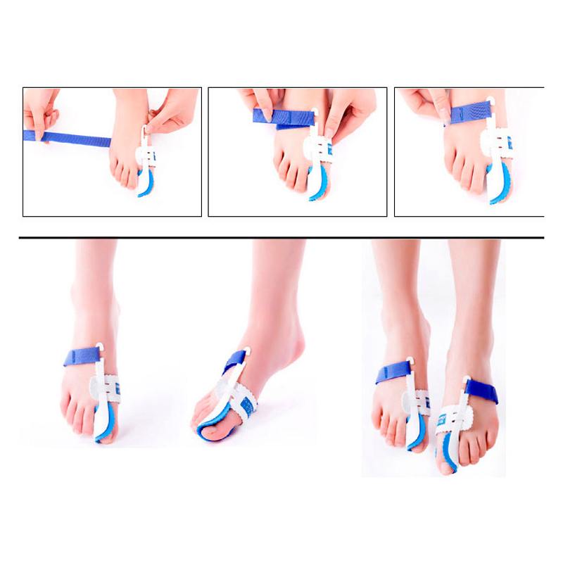 Bunion-Device-Hallux-Valgus-Orthopedic-Braces-Toe-Correction-Night-Foot-Care-Corrector-Thumb-Goodnight-Daily-Big (3)