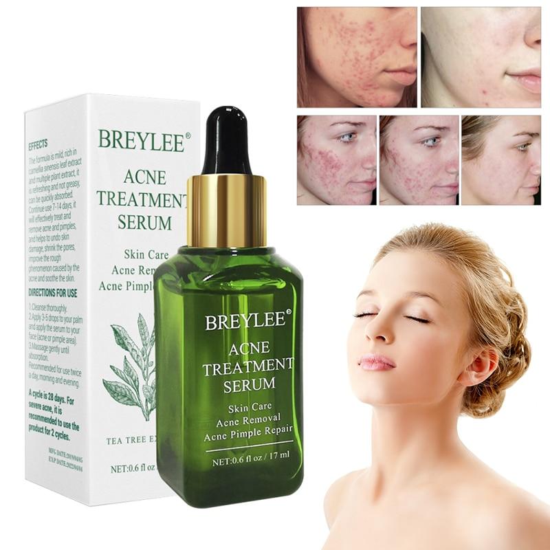 1Pc Green Tea Essence Acne Treatment Serum Facial Anti Acne Scar Removal Skin Care Whitening Pimple Remover Repair Liquid TSLM1