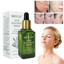 1Pc Green Tea Essence Acne Treatment Serum Facial Anti Acne Scar Removal Skin Ca